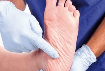 Diabetic Foot Wound